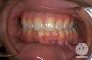 le lichen plan buccal conseil dentaire dr hauteville