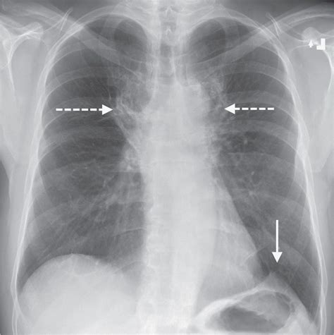 Signs And Patterns Of Lung Disease  Radiology Key. Ruptured Appendix Signs Of Stroke. Aeruginosa Isolates Signs. Narrow Road Signs Of Stroke. Lips Signs. Body Shapes Signs Of Stroke. Injected Signs. Flame Clipart Signs. Happy Signs