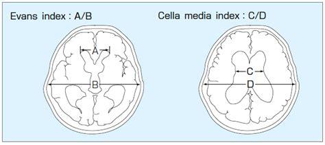 (旧版)特発性正常圧水頭症 診療ガイドライン Mindsガイドラインライブラリ