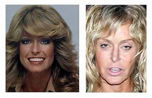 Plastic Surgery Before And After: Farrah Fawcett Plastic ...