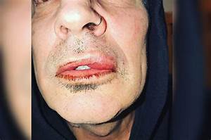 Tommy Lee says he was assaulted by his adult son | Page Six