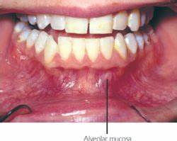 Alveolar | definition of alveolar by Medical dictionary