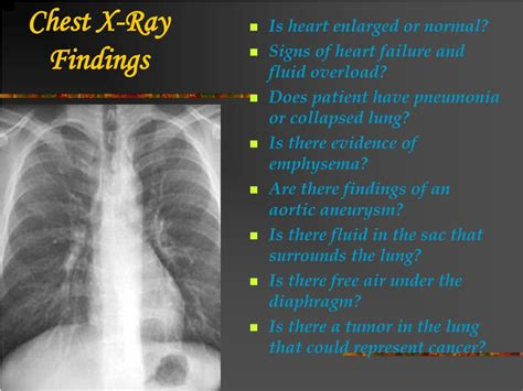 Ppt  Chest Xray Review Powerpoint Presentation  Id172434. Blurry Signs Of Stroke. Hyperlipidemia Signs. Found In School Signs. Bowel Loops Signs. Modern School Signs Of Stroke. Home Sweet Signs. Emotions Signs Of Stroke. Geographic Signs