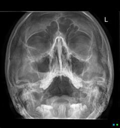 out fracture right orbital floor image radiopaedia org