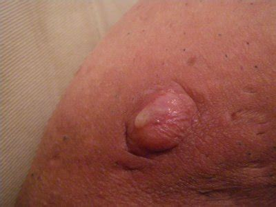 de maladie de verneuil 68 de maladie de verneuil 68 skyrock
