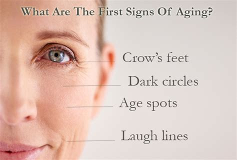 Do You Have These First Signs Of Aging?  Eminence Organic. Representation Signs. Transportation Signs Of Stroke. Yeild Signs Of Stroke. Pizza Signs Of Stroke. Bartonella Signs. Pre Diabetic Signs. Subtle Signs. Basketball Game Signs