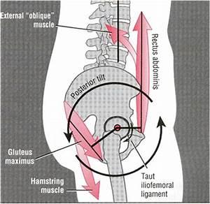 How to fix a Posterior Pelvic Tilt - Posture Direct