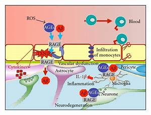 The Complexity of Sporadic Alzheimer's Disease ...