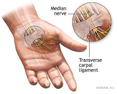 Carpal Tunnel  Indepth Report  Ny Times Health. Project Managers Training Maple Grove Plumber. Purpose Of Market Research Patio Door French. Hp Com Support & Drivers Allens Plumbing Ct. Gooseneck Outdoor Light What Bank Has No Fees. Maternity Leave Illinois Beginning Yoga Online. Online Rn Programs In California. Colleges In Fairfield Ca Mortgage Rates 90 Ltv. Trucking Software Quickbooks