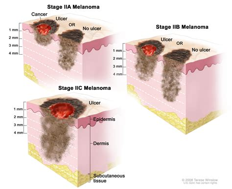 Melanoma Treatment (pdq®)—patient Version  National. Gooseneck Outdoor Light What Bank Has No Fees. Insurance Companies Reviews Usc Film Program. Optima Tax Relief Complaints Neck Pain Nyc. Effects Of Homeschooling On Children. Storage Companies In Brooklyn. Solar Panel Installers Ny Oregon Pest Control. Time Square Nyc Hotels Credit Checks For Jobs. Philadelphia Insurance Companies