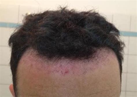 1763 fue dr maras hdc clinic cyprus page 3 forum by and for hair loss patients