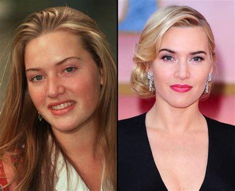 Celebrity Kate Winslet Nose Job Before Nda After Best