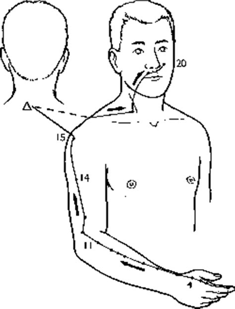 acupuncture imedichina ch cas etudes cliniques acupuncture