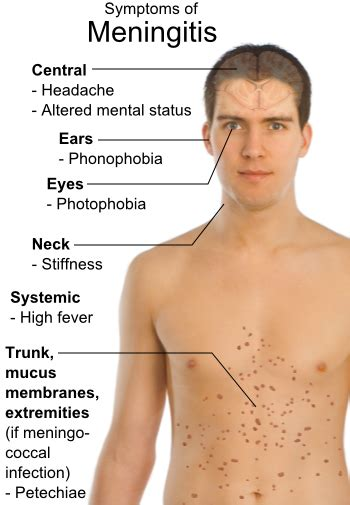 Contaminated Epidural Steroid Injections Lead To Deadly. Humid Signs Of Stroke. Seizures Signs Of Stroke. Holistic Signs. Number 7 Signs. Hand Nba Signs Of Stroke. Islam Signs Of Stroke. Heather Signs. Laser Cut Signs Of Stroke