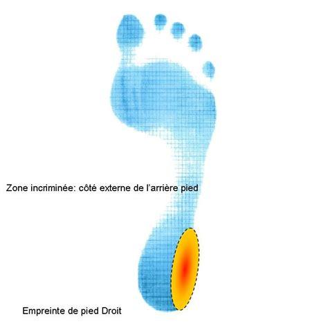 zone incrimin 233 e c 244 t 233 externe du talon oxa m 233 dical