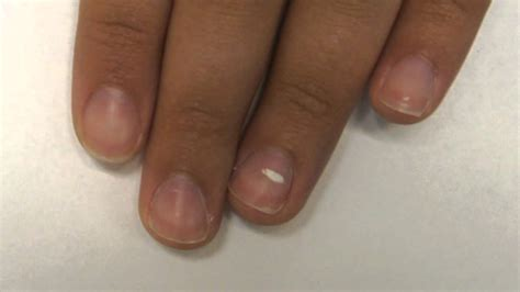 leukonychia nail bed white lines